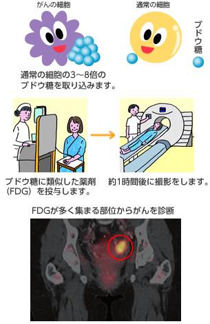 PET検査ってどんな検査? PET検査について FIMACC 沖縄PET/CT検査施設 機能画像